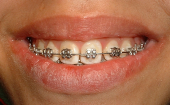 Ortodoncia con brackets met licos ortodoncia - Como alinear los dientes en casa sin brackets ...