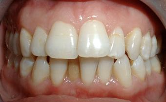 Ortodoncia r pida damon ortodoncia - Como alinear los dientes en casa sin brackets ...